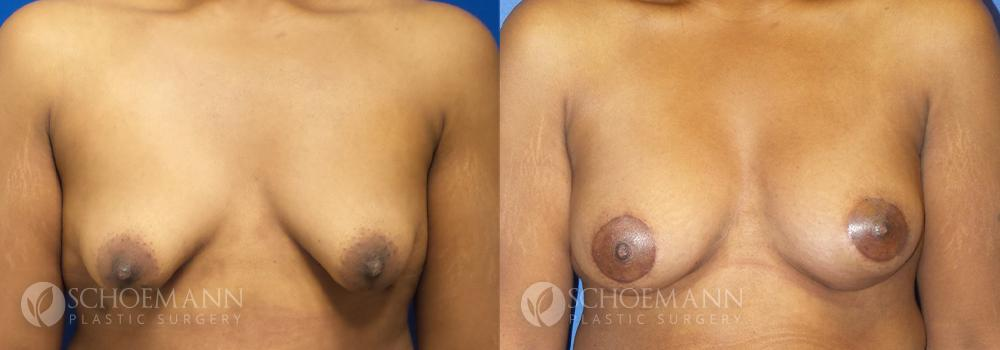 Schoemann-Plastic-Surgery_Encinitas_Breast-Lift-patient-1-1