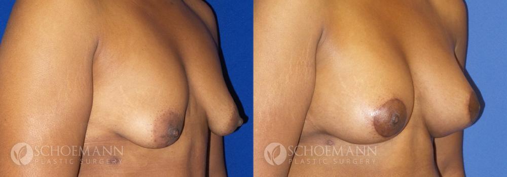Schoemann-Plastic-Surgery_Encinitas_Breast-Lift-patient-1-2