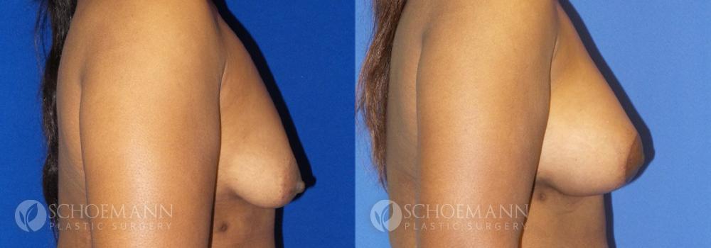 Schoemann-Plastic-Surgery_Encinitas_Breast-Lift-patient-1-3