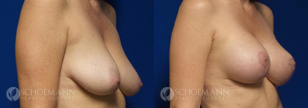 Schoemann-Plastic-Surgery_Encinitas_Breast-Lift-patient-2-2
