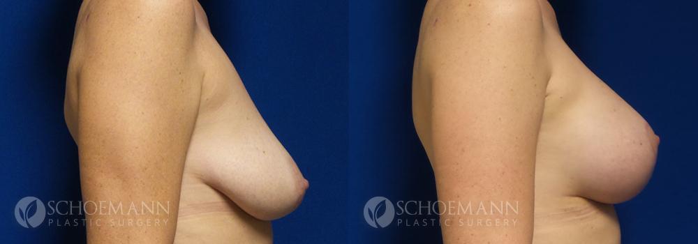 Schoemann-Plastic-Surgery_Encinitas_Breast-Lift-patient-2-3