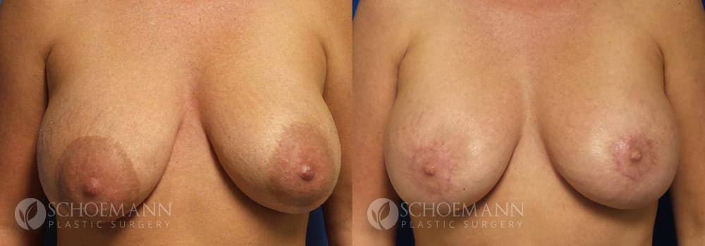 Schoemann-Plastic-Surgery_Encinitas_Breast-Lift-patient-3-1