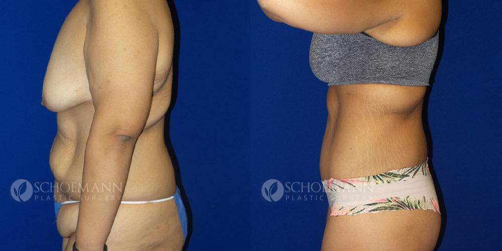 Schoemann-Plastic-Surgery_Encinitas_after-weight-loss-patient-1-2