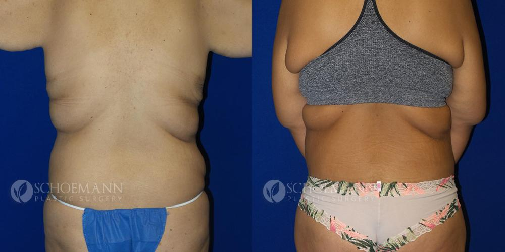 Schoemann-Plastic-Surgery_Encinitas_after-weight-loss-patient-1-3