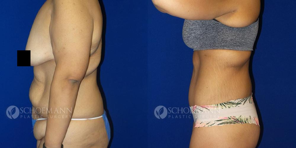 Schoemann-Plastic-Surgery_Encinitas_afterweightloss_censored__0000_1