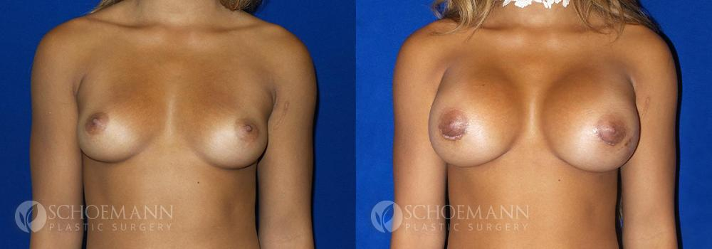 Schoemann-Plastic-Surgery_Encinitas_breast-augmentation-patient-1-1
