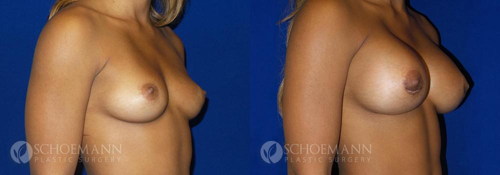 Schoemann-Plastic-Surgery_Encinitas_breast-augmentation-patient-1-2