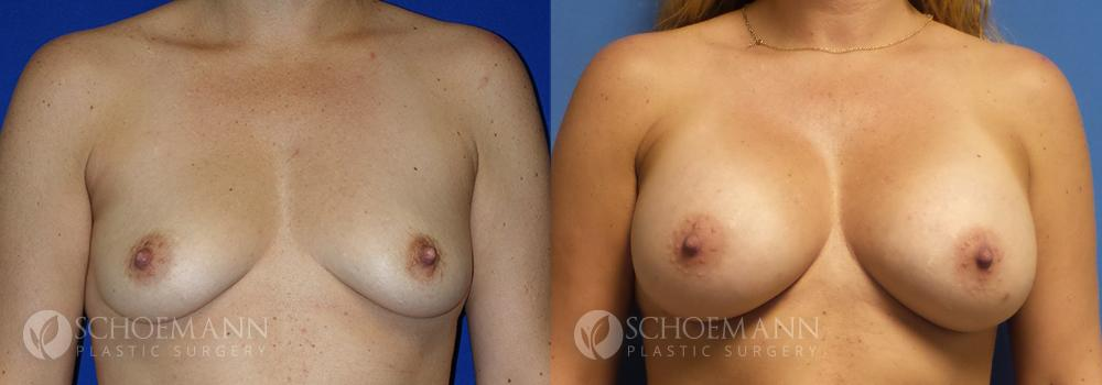 Schoemann-Plastic-Surgery_Encinitas_breast-augmentation-patient-10-1