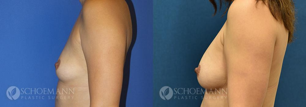 Schoemann-Plastic-Surgery_Encinitas_breast-augmentation-patient-11-1