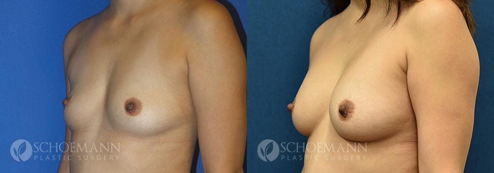 Schoemann-Plastic-Surgery_Encinitas_breast-augmentation-patient-11-2