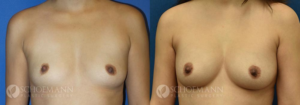 Schoemann-Plastic-Surgery_Encinitas_breast-augmentation-patient-11-3