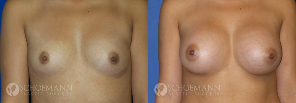 Schoemann-Plastic-Surgery_Encinitas_breast-augmentation-patient-4-1