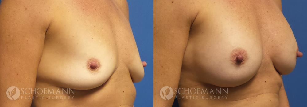 Schoemann-Plastic-Surgery_Encinitas_breast-augmentation-patient-5-2