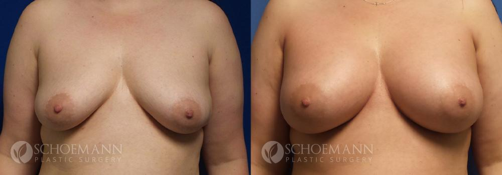 Schoemann-Plastic-Surgery_Encinitas_breast-augmentation-patient-6-1