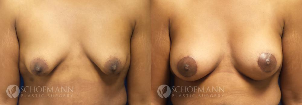 Schoemann-Plastic-Surgery_Encinitas_breast-augmentation-patient-7-1