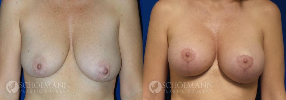 Schoemann-Plastic-Surgery_Encinitas_breast-augmentation-patient-8-1