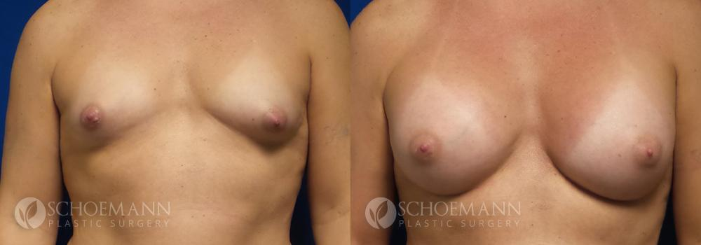 Schoemann-Plastic-Surgery_Encinitas_breast-augmentation-patient-9-1