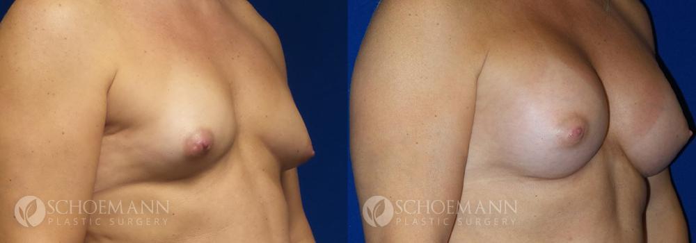 Schoemann-Plastic-Surgery_Encinitas_breast-augmentation-patient-9-2
