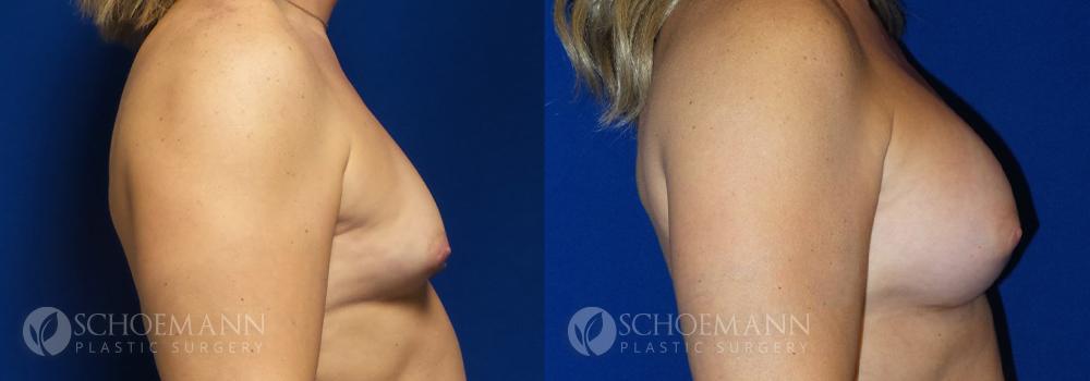 Schoemann-Plastic-Surgery_Encinitas_breast-augmentation-patient-9-3