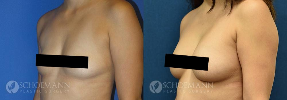 Schoemann-Plastic-Surgery_Encinitas_breast-augmentation_censored__0000_1