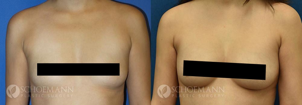 Schoemann-Plastic-Surgery_Encinitas_breast-augmentation_censored__0001_2