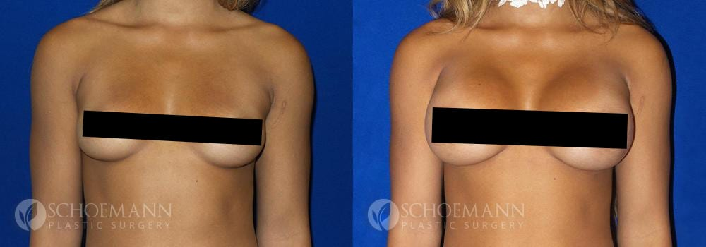 Schoemann-Plastic-Surgery_Encinitas_breast-augmentation_censored__0003_4