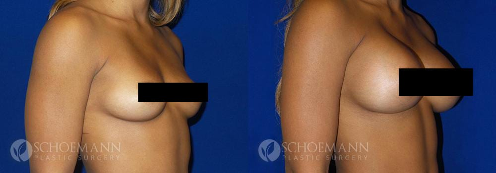 Schoemann-Plastic-Surgery_Encinitas_breast-augmentation_censored__0004_5