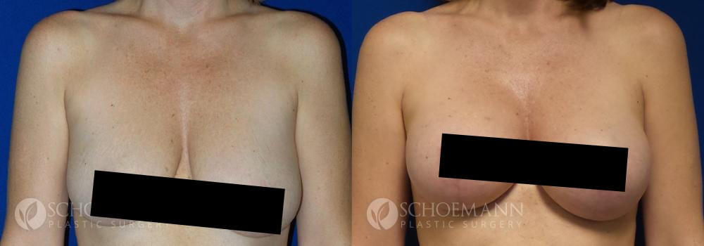Schoemann-Plastic-Surgery_Encinitas_breast-lift_censored__0000_1