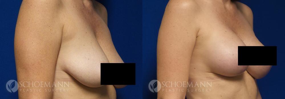 Schoemann-Plastic-Surgery_Encinitas_breast-lift_censored__0001_2