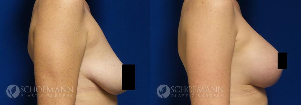Schoemann-Plastic-Surgery_Encinitas_breast-lift_censored__0002_3