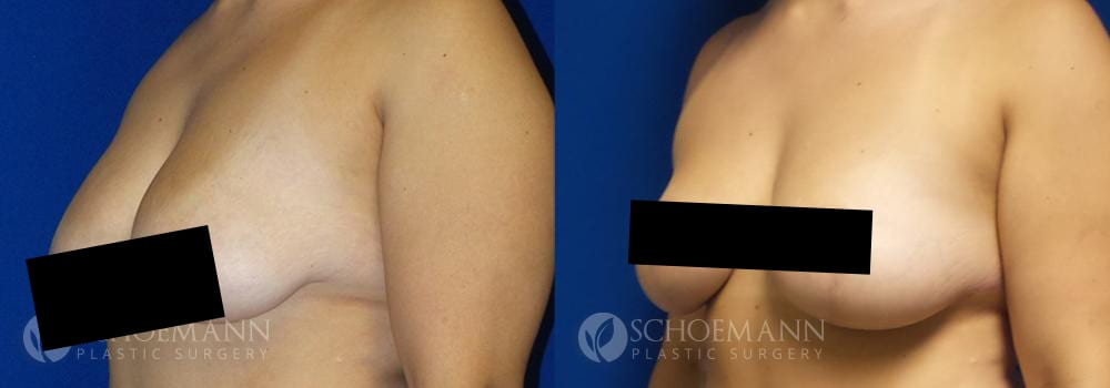 Schoemann-Plastic-Surgery_Encinitas_breast-lift_censored__0005_6