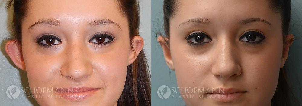 Schoemann-Plastic-Surgery_Encinitas_ear-surgery-patient-1-1