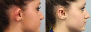 Schoemann-Plastic-Surgery_Encinitas_ear-surgery-patient-1-2