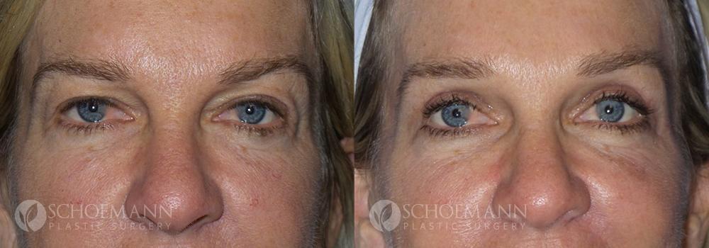 Schoemann-Plastic-Surgery_Encinitas_eyelid-surgery-patient-1-1