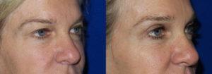 Schoemann-Plastic-Surgery_Encinitas_eyelid-surgery-patient-1-2