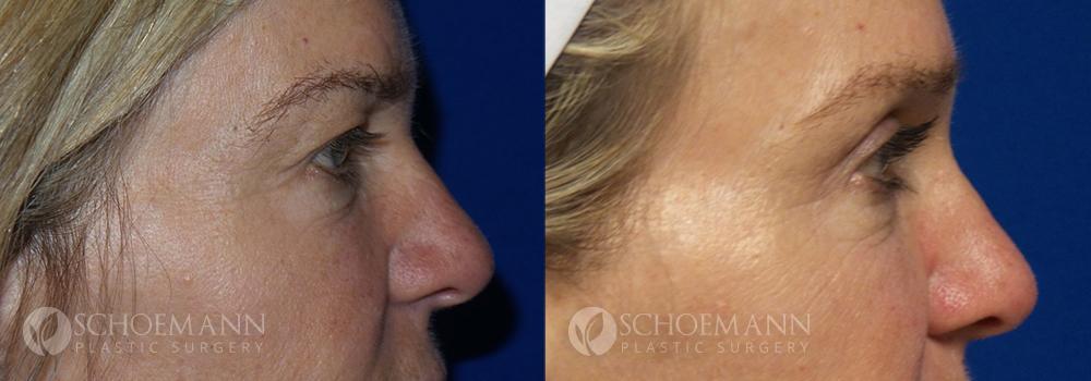 Schoemann-Plastic-Surgery_Encinitas_eyelid-surgery-patient-1-3