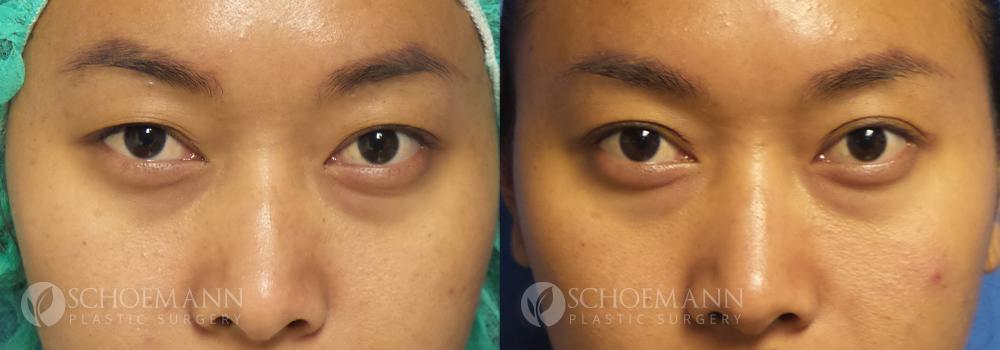 Schoemann-Plastic-Surgery_Encinitas_eyelid-surgery-patient-2-1