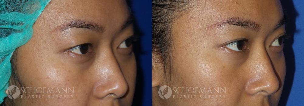 Schoemann-Plastic-Surgery_Encinitas_eyelid-surgery-patient-2-2