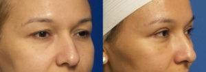 Schoemann-Plastic-Surgery_Encinitas_eyelid-surgery-patient-2-3