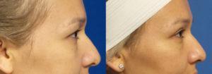 Schoemann-Plastic-Surgery_Encinitas_eyelid-surgery-patient-3-3