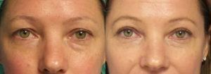 Schoemann-Plastic-Surgery_Encinitas_eyelid-surgery-patient-4-1