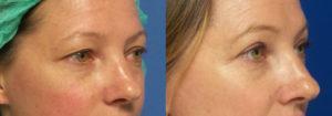 Schoemann-Plastic-Surgery_Encinitas_eyelid-surgery-patient-4-2