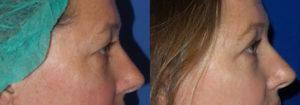 Schoemann-Plastic-Surgery_Encinitas_eyelid-surgery-patient-4-3