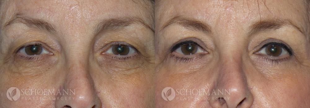 Schoemann-Plastic-Surgery_Encinitas_eyelid-surgery-patient-5-1