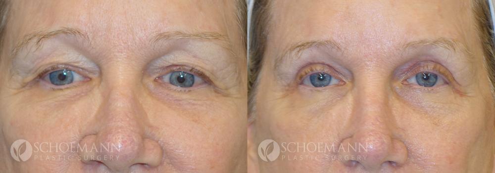 Schoemann-Plastic-Surgery_Encinitas_eyelid-surgery-patient-6-1