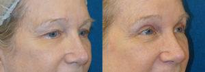 Schoemann-Plastic-Surgery_Encinitas_eyelid-surgery-patient-6-2