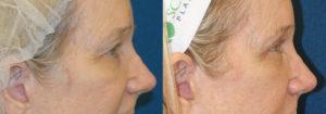 Schoemann-Plastic-Surgery_Encinitas_eyelid-surgery-patient-6-3
