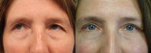 Schoemann-Plastic-Surgery_Encinitas_eyelid-surgery-patient-7-1
