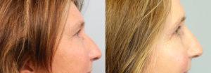 Schoemann-Plastic-Surgery_Encinitas_eyelid-surgery-patient-7-2