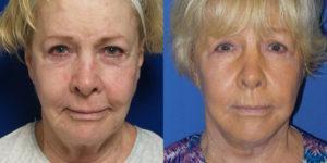 Schoemann-Plastic-Surgery_Encinitas_facelift-patient-1-1